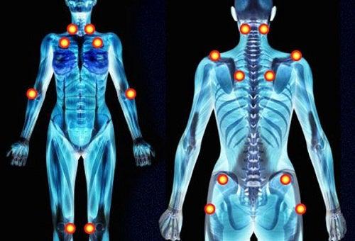 Fibromyalgie: Symptome mit Heilkräutern lindern