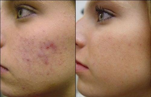 4 Gesichtsmasken gegen Akne - Besser Gesund Leben