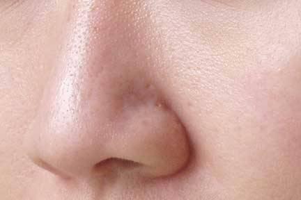 Erweiterte Poren machen sich oft im Nasenbereich bemerkbar