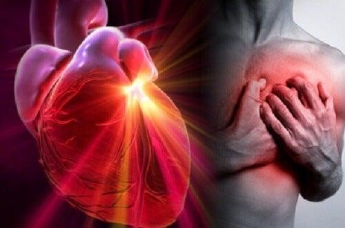 Herzinfarkt, Herzstillstand, Schlaganfall: Wie erkennt man den Unterschied?
