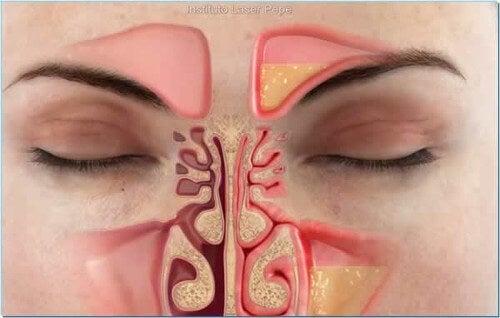Ein schnelles Mittel gegen eine verstopfte Nase