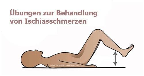 übungen-ischiasschmerzen