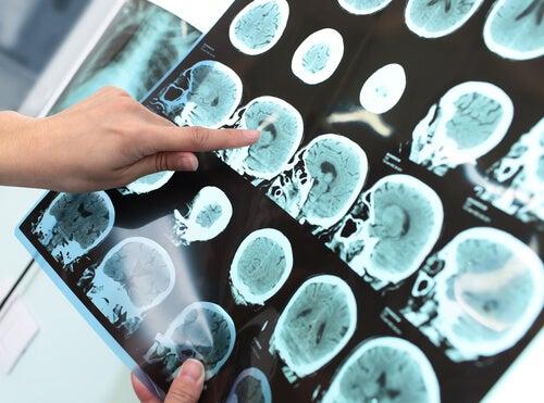 5 Ratschläge, wie du Alzheimer vorbeugen kannst