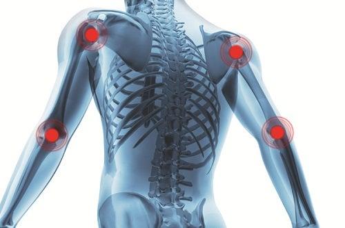Honigwasser gegen Arthritis