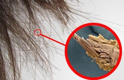Spliss: natürliche Mittel gegen Haarspaltereien