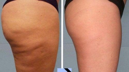 Einfache, hausgemachte Cellulite-Behandlungen