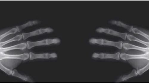 Was passiert beim Fingerknacken?