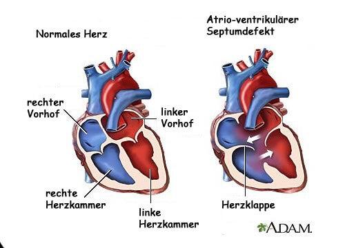 Was sind Herzgeräusche? – 7 Symptome