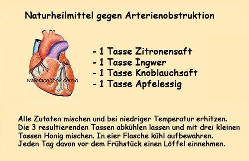 Gesundheitsrisiko Arterienverstopfung