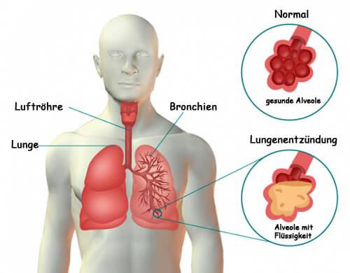 Lungenentzündung: Symptome und unterstützende Naturheilmittel