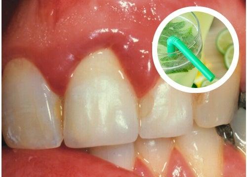 Wirksames, selbstgemachtes Mundwasser gegen Zahnfleischbluten