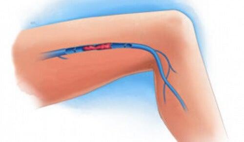 Symptome einer Venenthrombose in den Beinen