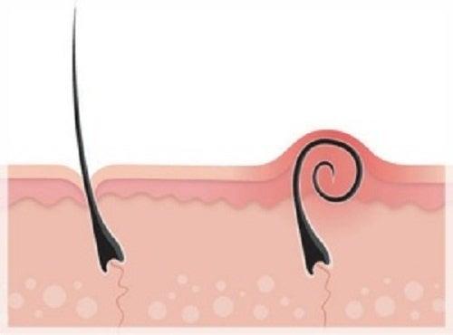 Eingewachsene Haare Tipps Ratschläge Besser Gesund Leben