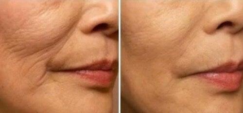 Wie man Fältchen im Mundbereich vermeiden kann