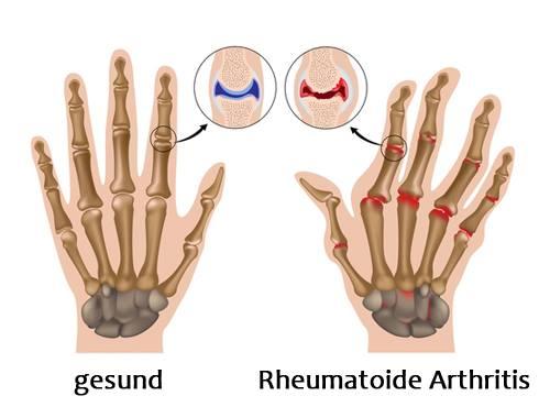 Rheumatoide Arthritis (2)
