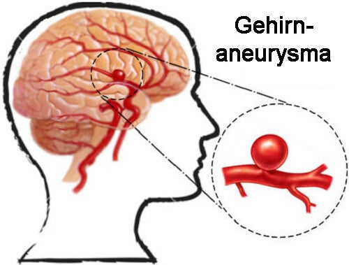 Aneurysma: Vorsorge und Anzeichen