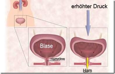 harninkontinenz