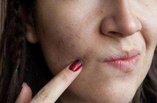 8 Nahrungsmittel gegen Hautunreinheiten