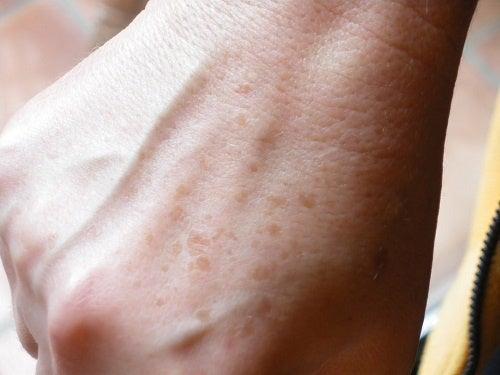 Stärkende Lotionen gegen Hautflecken