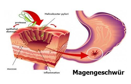 Naturheilmittel gegen Helicobacter Pylori