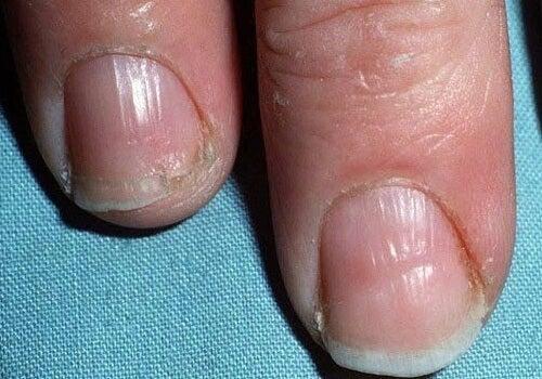 Fingernagel Was Man Alles An Ihnen Ablesen Kann
