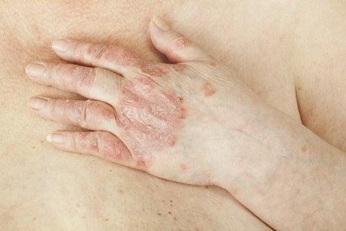 Kann man Schuppenflechte heilen?