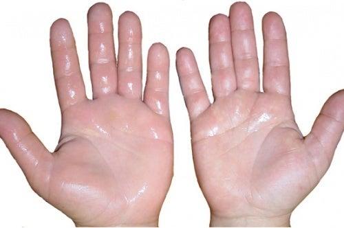 sechs hausmittel gegen geschwollene hände - besser gesund leben