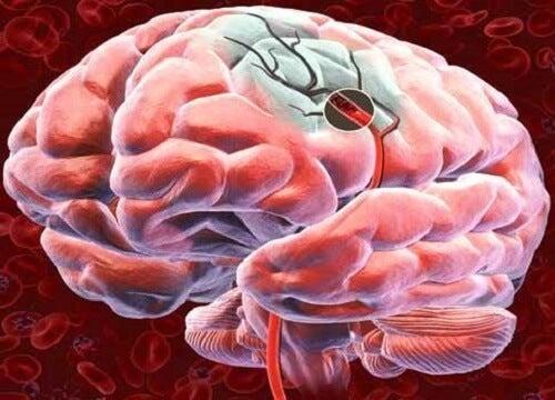 Entdecke 5 Möglichkeiten, um die Durchblutung des Gehirns zu verbessern