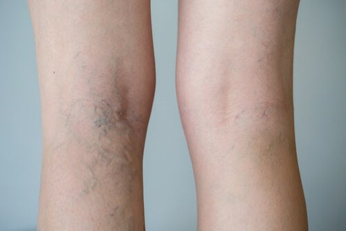 Eine gesunde Durchblutung der Beine: die richtige Ernährung