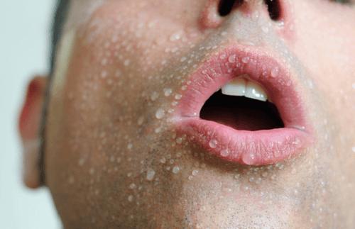 Schweiß kann ein Anzeichen von Herzkrankheit sein