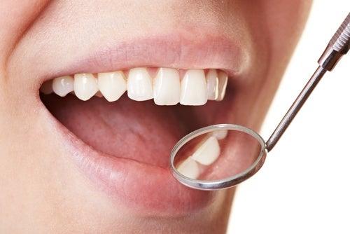 Wie man Zahnbelag daheim auf einfache Art entfernt