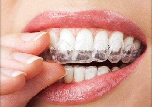 4 Tipps gegen Zähneknirschen
