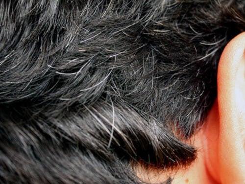 6 Hausmittel gegen das frühe Auftauchen grauer Haare