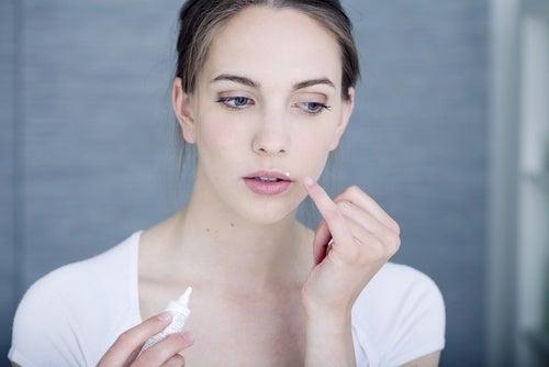 Lippenherpes schnell und einfach bekämpfen