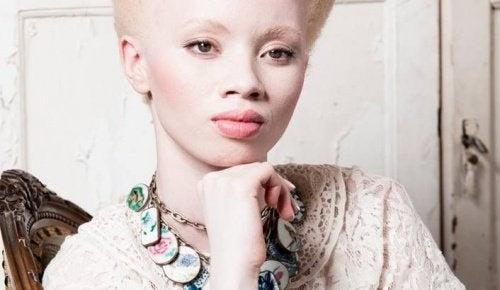 Albinismus: der bewegende Fall des Models Thando Hopa