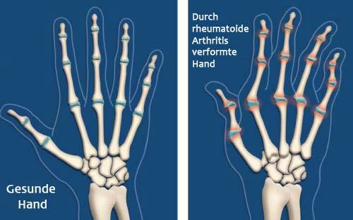 Arthritis-Illustration