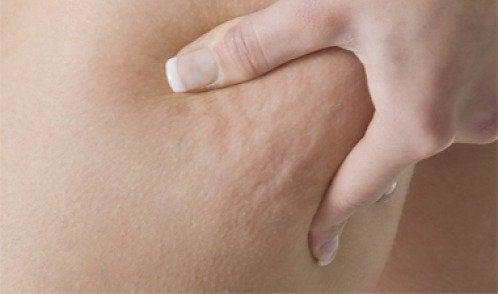 Wie du Cellulite durch Ernährung reduzieren kannst