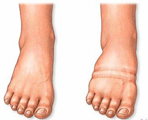 Geschwollene Beine und Füße / Dickes Bein