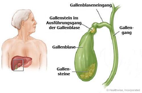 Gallensteine auf natürliche Weise entfernen
