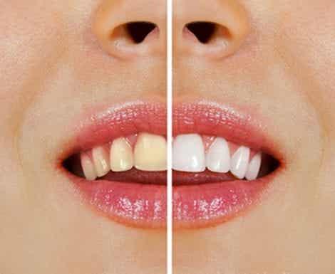 Gelbe Zähne: Diese Nahrungsmittel sind daran schuld!