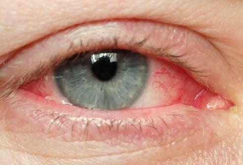 Natürliche Abhilfe gegen gereizte Augen