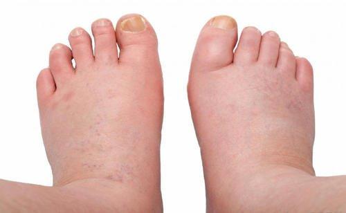 Geschwollene Füße können ein Anzeichen für Herzkrankheiten sein
