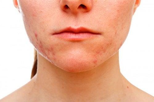 Hautprobleme wegen Stress