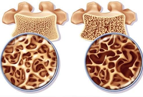 Osteoporose: Übungen zur Prophylaxe und Unterstützung der Therapie