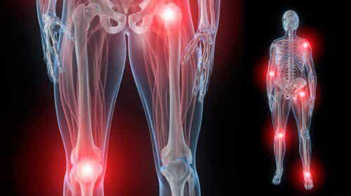Ursachen für nächtliche Gelenkschmerzen und Behandlungsmöglichkeiten