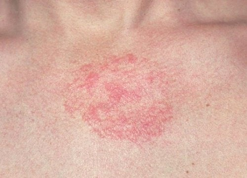 5 Hausmittel gegen Dermatitis