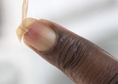 Wie brüchige Nägel gestärkt werden können