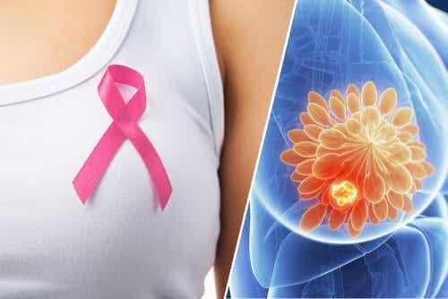 10 Anzeichen, die auf Brustkrebs hinweisen