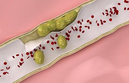 7 Lebensmittel, die deinen Blutgefäßen gut tun