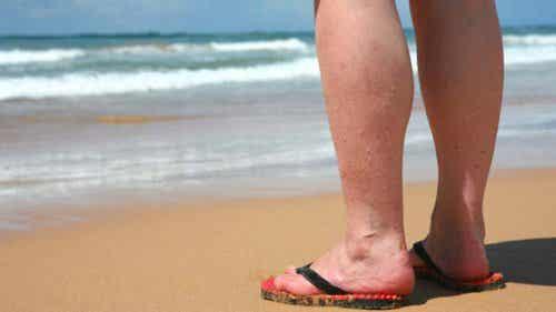 Du hast Krampfadern? 4 Dinge, die du im Sommer vermeiden solltest